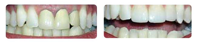 Older metal crowns show grey at the gum line. New material shows a seamless transition between gum and tooth!