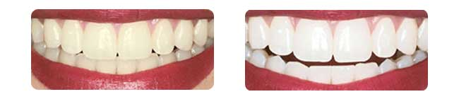 before-and-after-whitening