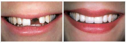 dental-implants-naples-fl