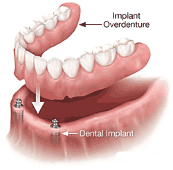 implant-supported-overdenture
